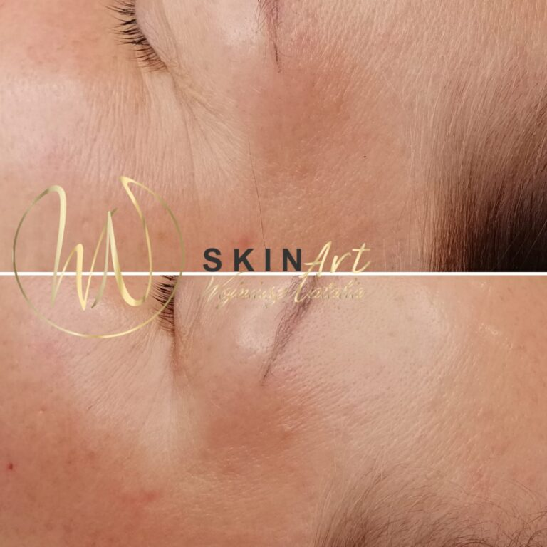 zabiegi skin art