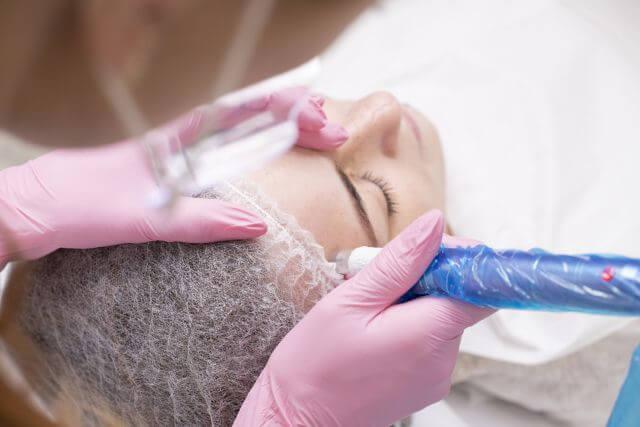 mezoterapia mikroigłowa skin art